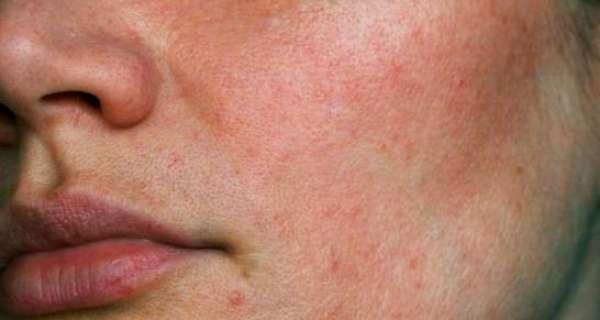 Consejos básicos para eliminar el exceso de grasa y el brillo de la cara